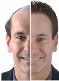 Resultat af hårtransplantation