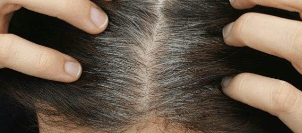 Grå hår i hovedbunden