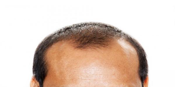 hvorfor taber mænd håret