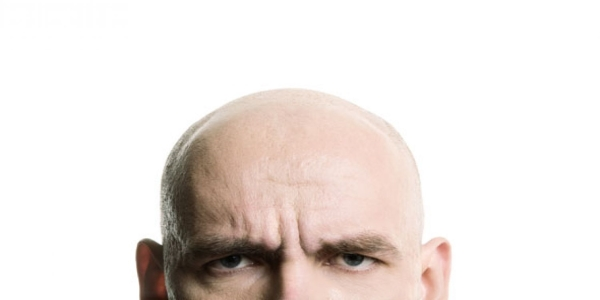mister hår på hovedet
