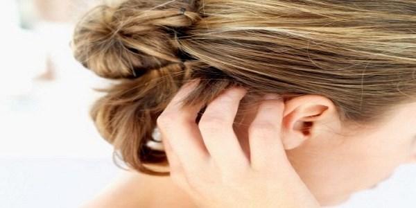 kløe i hovedbund og hårtab