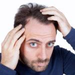 Hårtransplantation – Hvad du bør vide