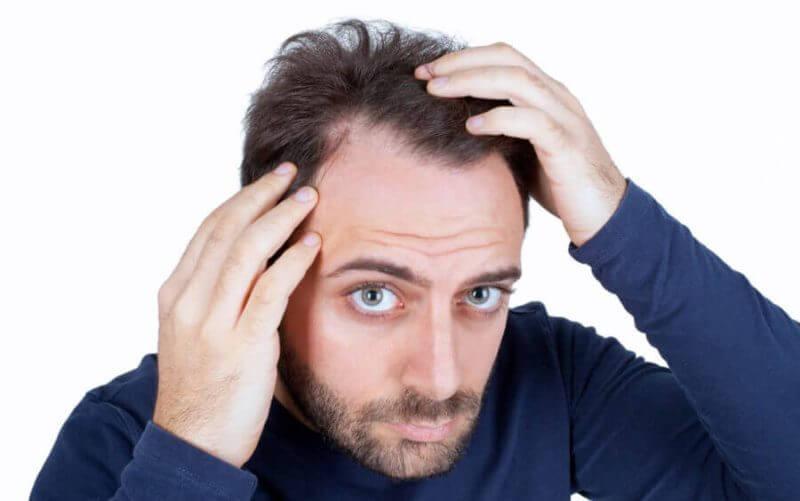 Virker biotin mod hårtab
