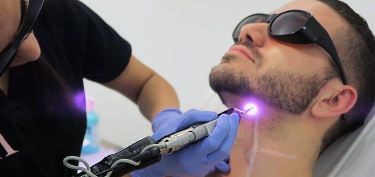 laser hår fjerner
