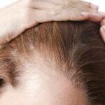 Tyndt hår – få volumen tilbage