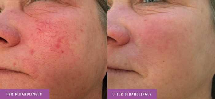 Karsprængninger i ansigt behandling