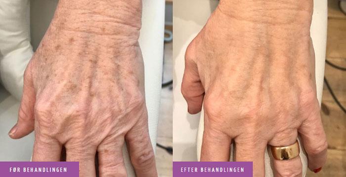 Fjerne pigmentpletter på hænder