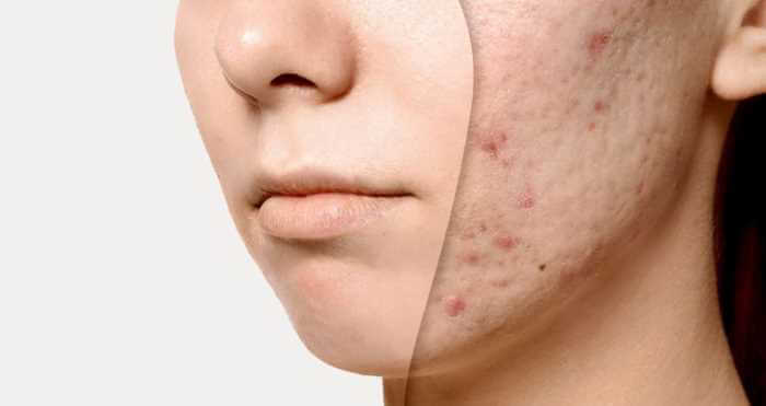 acne ar behandling