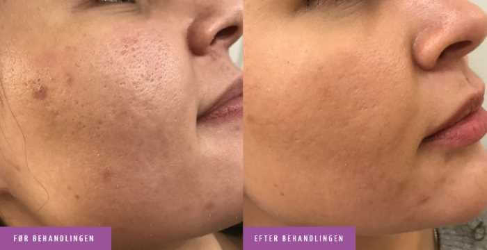Acne ar ansigt behandling