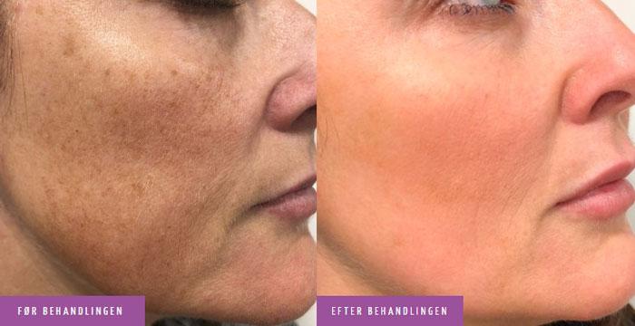 Pigmentpletter i ansigt behandling