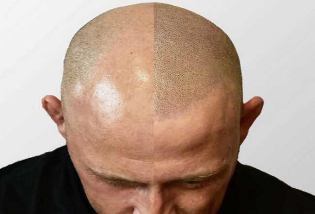hår på hovedet
