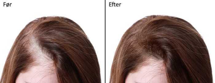 hvad koster en hårtransplantation i danmark