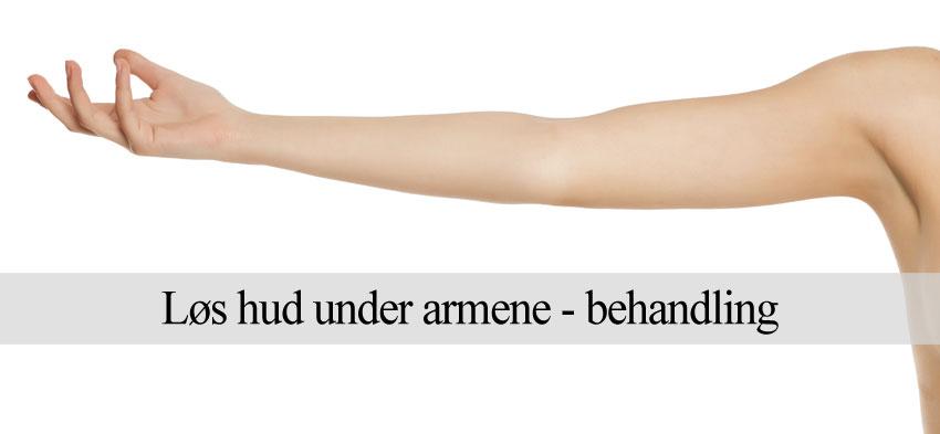 Løs hud under armene og mormorarme