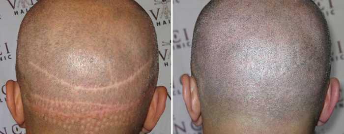 scalp pigmentation mod ar fra hårtransplantation