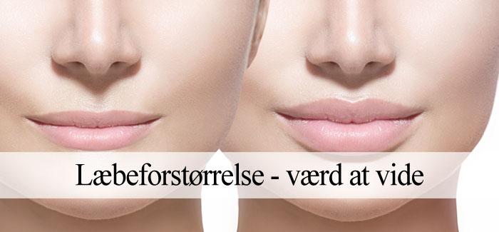 læbeforstørrelse