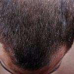 Skæl i håret – din guide til at komme af med skæl i håret