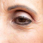 Har du hængende øjenlåg? Få en reduktion af øjenlåg