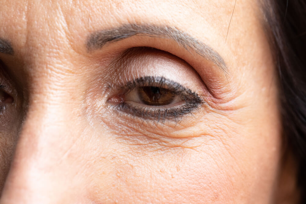 reduktion af øjenlåg
