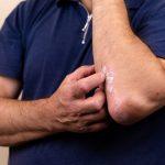 Eksem i hovedbunden – sådan behandler du eksem i hovedbunden