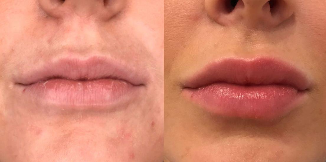Får jeg ar eller bivirkninger efter en læbeforstørrelse?