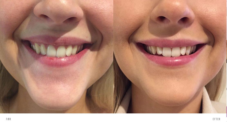 Tandkødssmil (gummy smile) behandling