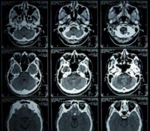 mri scan brain